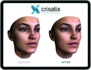 Crisalix face on iPad